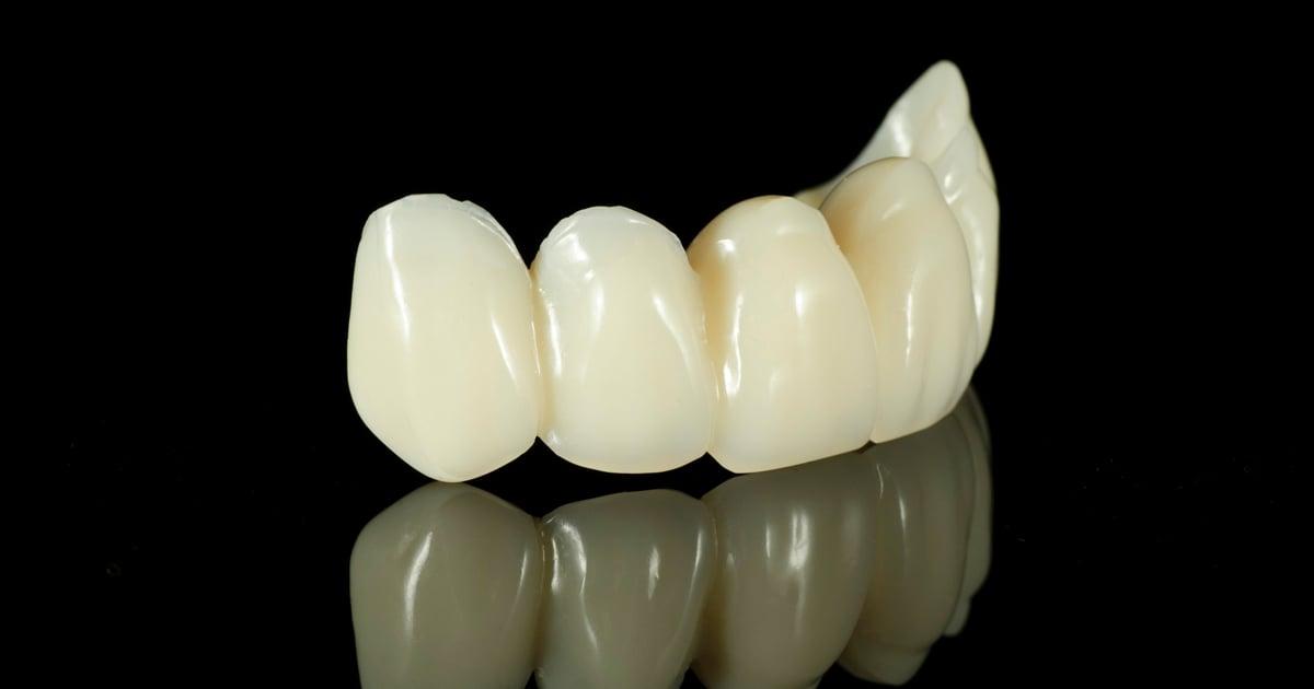 dca-blog_article-28_dental-bridges_1200x630
