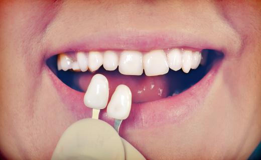 dca-blog_article-46_veneers-and-dental-health